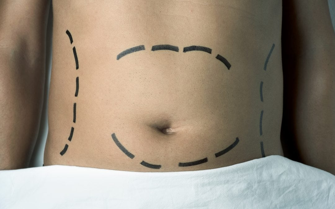 Abdominaplasty (Tummy Tuck)