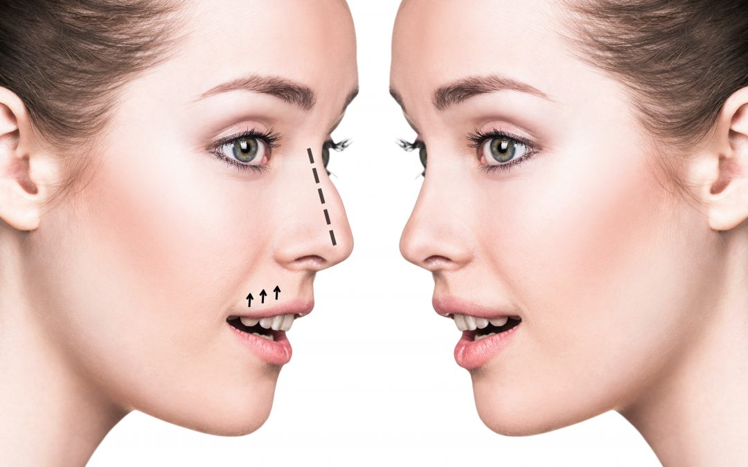 Is A Rhinoplasty Procedure Liverpool Right For Me?