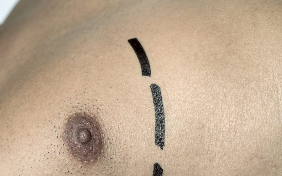 Gynaecomastia surgery (male breast reduction)